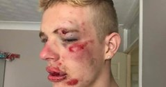 Young gay man badly beaten up in sickening homophobic attack outside McDonald's